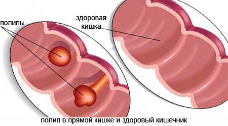 polip-pryamoy-kishki